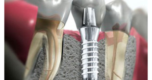 dental-implants-problems