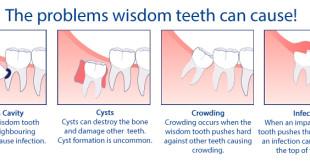Wisdom-teeth-service