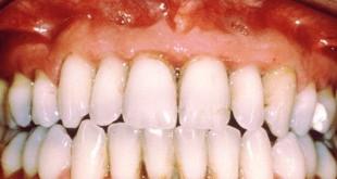 gingivitis-2