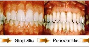 how-to-reverse-periodontal-disease