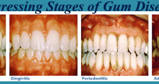 Gum-Disease-Vevera-Family-Dental