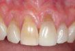 receding-gums-before-treatment
