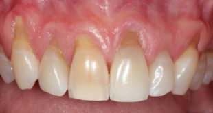 receding-gums-before-treatment