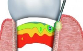 benefits-of-laser-treatments