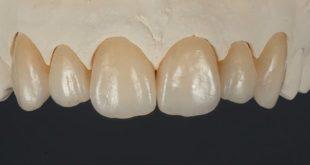 Cementation of zirconia