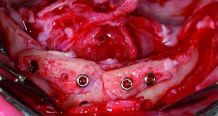 Augmentation and implant treatment