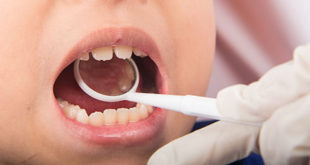 Effects of early preventive dental care