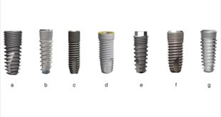 Microthreaded Dental Implants Preserve Crestal Bone