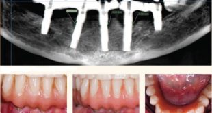 surgerical methode for periimplantitis
