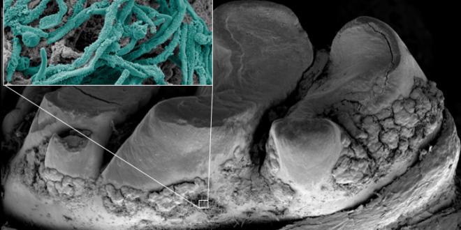 Blocking yeast bacteria interaction