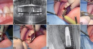 use of narrow implants