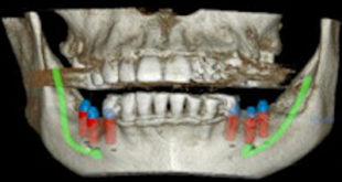 CBCT_3D_implants_400