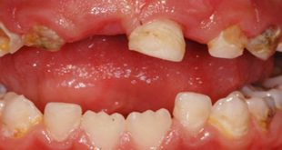 Caries prevention is not just more fluoride