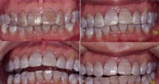 home bleaching of tetracycline-stained teeth