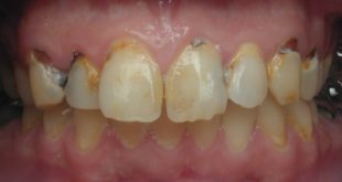 Does bariatric surgery increase caries risk
