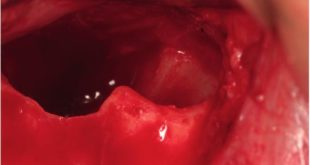 Membrane perforation rate in lateral maxillary sinus floor augmentation