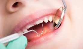 Can biomarkers in saliva predict caries risk in kids