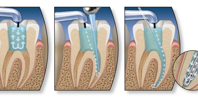 Root-canal-Treatment1