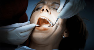 possible alternative to amalgam