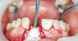 Dental-implants-surgery-in-real-patient_278526416