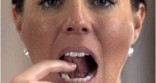 Check Your Mouth to Stop Oral Cancer