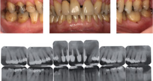 Tooth related factors linked to perio bone loss