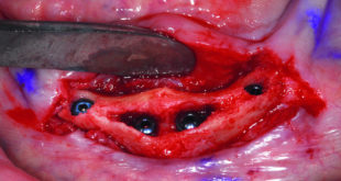 Brain guided implant reconstruction