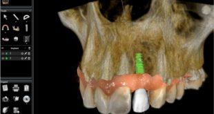 Titanium Implant Alternative