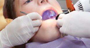 bisphenol A leaching from dental materials