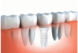 Dental-Implant-Teeth-Ceramic1