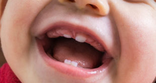 New study on primary dentition takes first steps toward early autism diagnosis