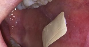 Plaster which sticks inside the mouth