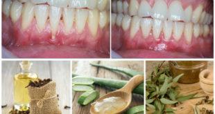 receding-gums-cures