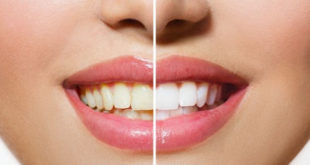 A safe and effective way to whiten teeth