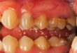 Can ultrasound accurately measure periodontal pockets