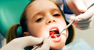 Tooth fillings made with BPA tied to behavior issues
