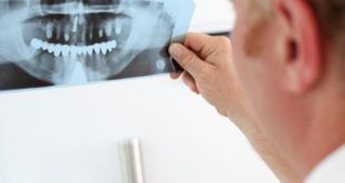Biomaterial could keep tooth alive after root canal