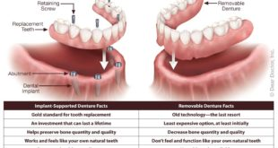 implant-supported-dentures-vs-removable