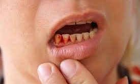 Is an antibiotic always necessary for bleeding gums
