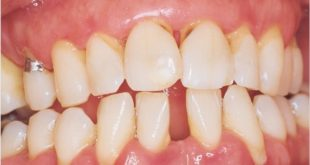 Grant to Explore Use of Biomarkers in Detecting Dental Resorption