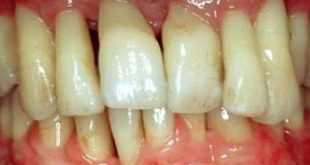Is there an autoimmune component to periodontal disease