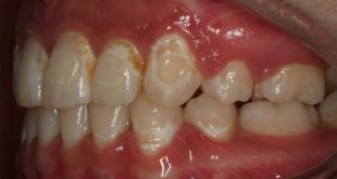New dental adhesive prevents tooth decay around orthodontic brackets