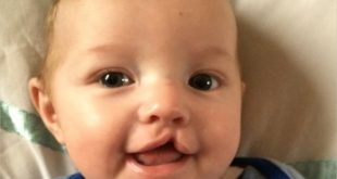 Stem Cells Used to Repair Cleft Lip and Palate