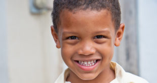 chalky teeth in children and the uptake of Bisphenol A not likely