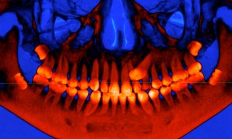 1-badmolarsthe