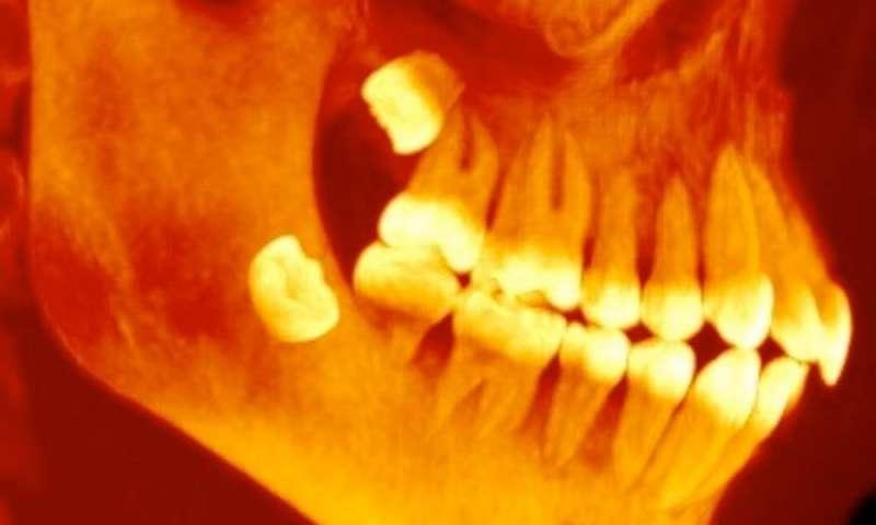 2-badmolarsthe