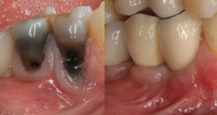 A surgical approach to the management of periapical implant lesions
