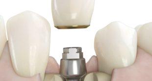 No screw no glue a prosthodontic dream come true