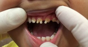 Ending fluoridation linked to more caries, higher costs