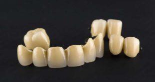 Metal ceramics remain gold standard, review study suggests